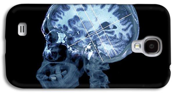 Brain In Alzheimer's Disease Galaxy S4 Case