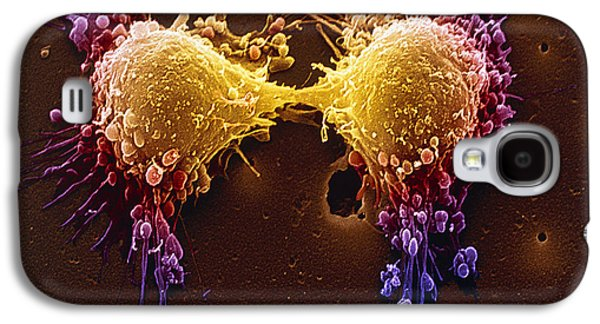 Cancer Cell Division Galaxy S4 Case by SPL and Photo Researchers