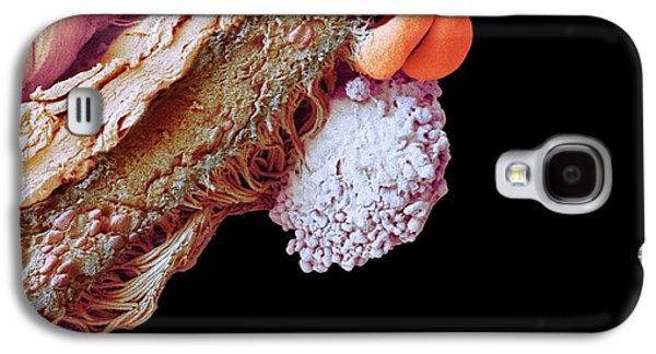Cells In Lung Tissue Galaxy S4 Case