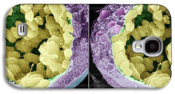 Dividing Pollen Cell Galaxy S4 Case by Professor T. Naguro