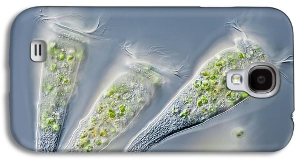 Epistylis Sp. Hypotriche Ciliates Galaxy S4 Case by Gerd Guenther