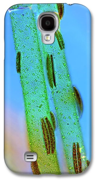 Epithemia Diatoms Galaxy S4 Case