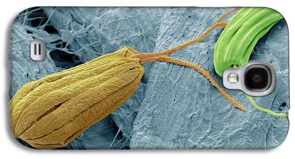 Flagellate Protozoa Galaxy S4 Case