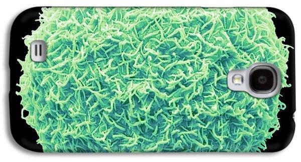 Freshwater Alga Galaxy S4 Case