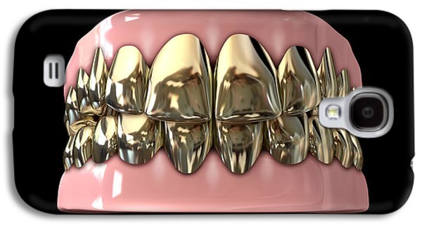 Golden Gangster Teeth And Gums Galaxy S4 Case