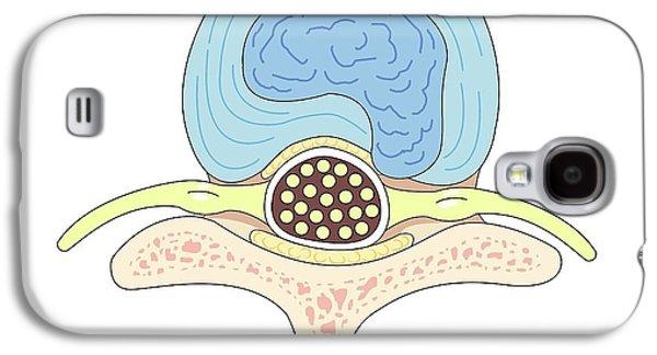 Herniated Intervertebral Disc Galaxy S4 Case by John T. Alesi