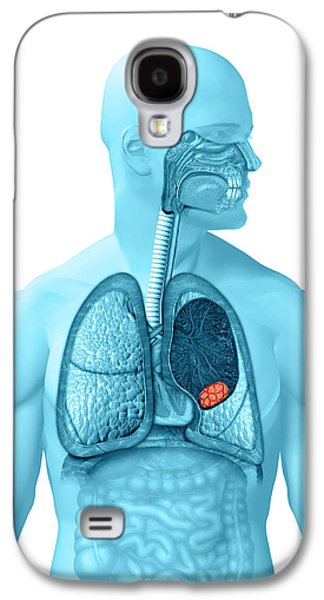 Lung Cancer Galaxy S4 Case by Carol & Mike Werner