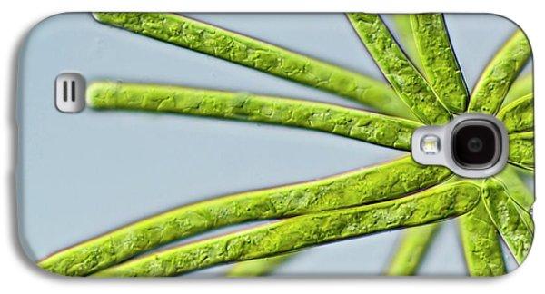 Ophiocytium Sp. Heterokont Alga Galaxy S4 Case by Gerd Guenther
