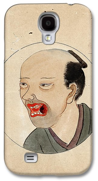 Oral Cancer Patient Galaxy S4 Case by National Library Of Medicine