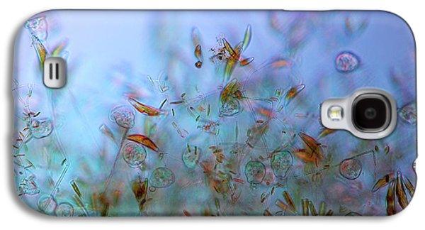 Protozoa And Diatoms In Periphyton Galaxy S4 Case