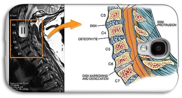 Protruding Disc In The Cervical Spine Galaxy S4 Case by John T. Alesi