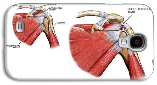 Shoulder Tendon Injury Galaxy S4 Case by John T. Alesi