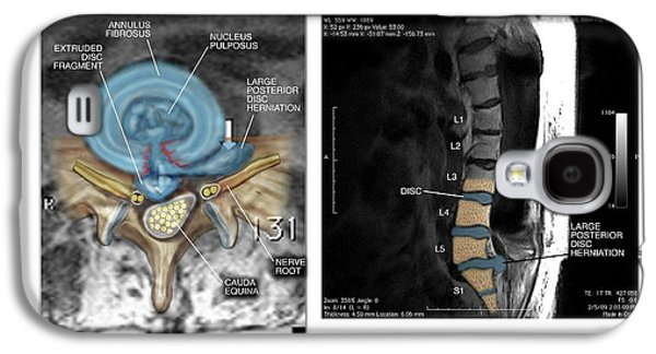 Slipped Disc In The Lumbar Spine Galaxy S4 Case