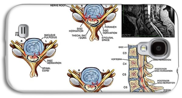 Slipped Discs In The Cervical Spine Galaxy S4 Case