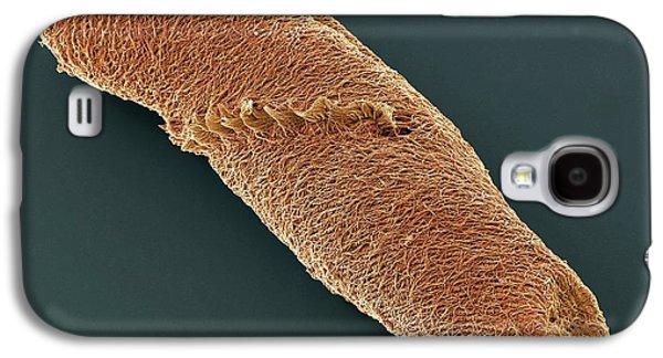 Spirostomum Ciliate Protozoan Galaxy S4 Case by Steve Gschmeissner