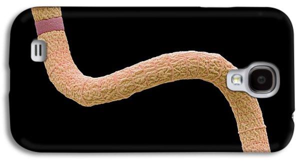 Spirulina Cyanobacteria Galaxy S4 Case by Steve Gschmeissner