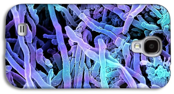 Streptomyces Coelicoflavus Bacteria Galaxy S4 Case by Science Photo Library