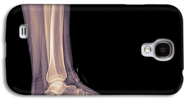 Trainers X-ray Galaxy S4 Case