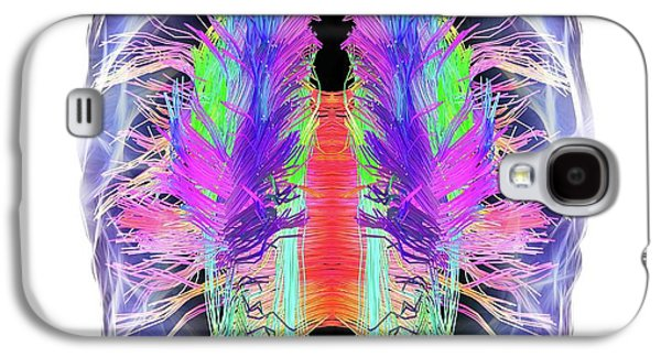 White Matter Fibres And Brain Galaxy S4 Case