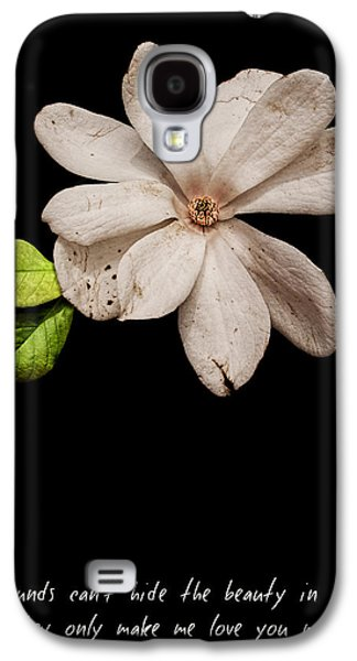 Wounds Cannot Hide The Beauty In You Galaxy S4 Case