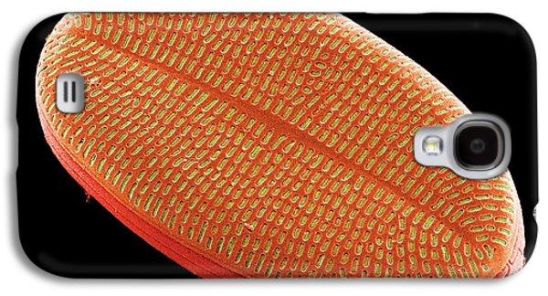 Diatom, Sem Galaxy S4 Case by Steve Gschmeissner