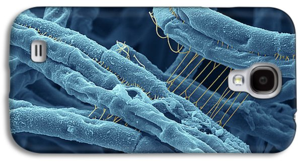 Bacteria Galaxy S4 Cases - Anthrax bacteria SEM Galaxy S4 Case by Eye Of Science and Photo Researchers