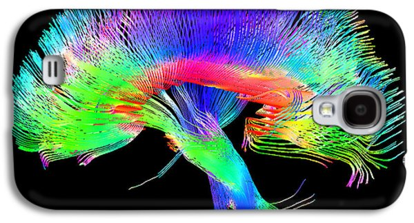 Brain Pathways Galaxy S4 Case by Tom Barrick, Chris Clark, Sghms