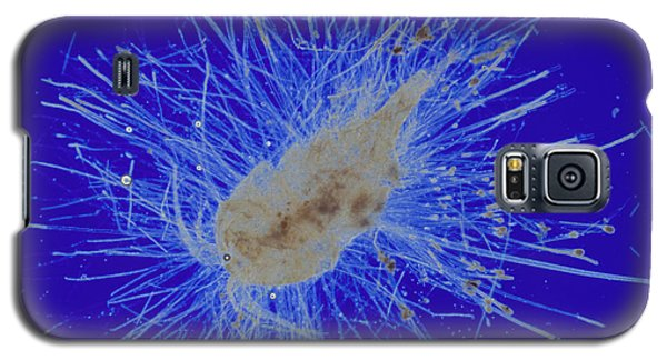 Aquatic Phycomycete Galaxy S5 Case by M. I. Walker