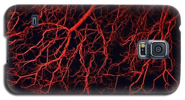 Dark Heart Galaxy S5 Case