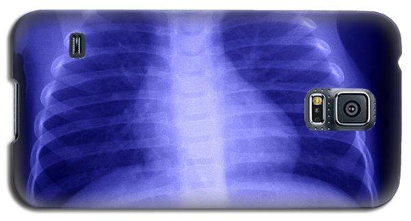 Swallowed Nail Galaxy S5 Case