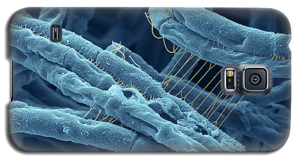 Anthrax Bacteria Sem Galaxy S5 Case by Eye Of Science and Photo Researchers