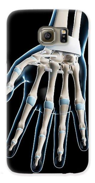Carpal Bones Galaxy S6 Cases | Fine Art America