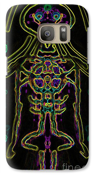 Galaxy Case featuring the digital art Bodywire Variation 10 by Devin  Cogger