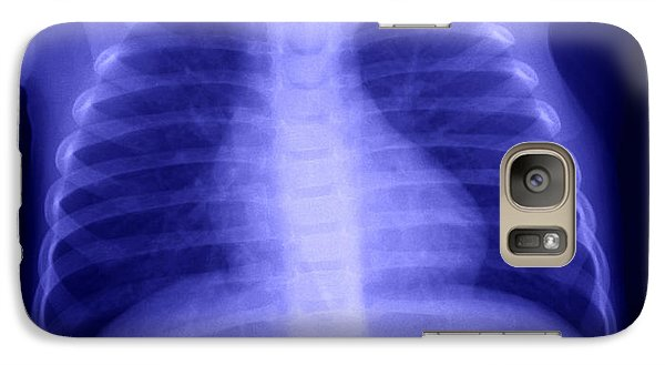 Swallowed Nail Galaxy Case by Ted Kinsman