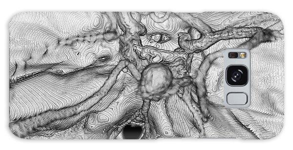Cerebral Galaxy Case - Cerebral Aneurysm by K H Fung/science Photo Library