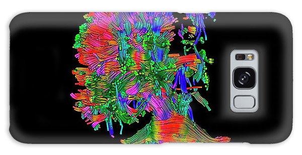 Cerebral Galaxy Case - Cerebral Palsy by Simon Fraser/science Photo Library