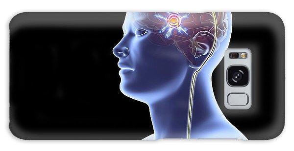 Cerebral Galaxy Case - Deep Brain Stimulation by Alfred Pasieka