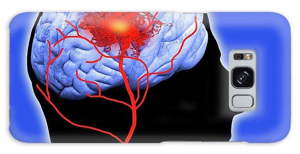 Scientific Illustration Galaxy Case - Human Brain Showing Stroke by Victor De Schwanberg