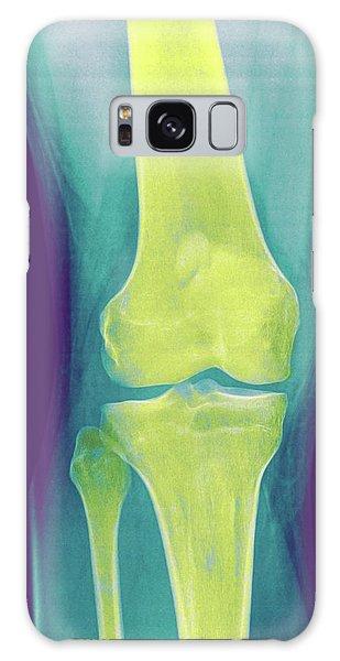 Body Parts Galaxy Case - Knee X-ray by Photostock-israel
