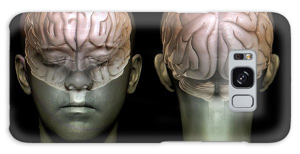 Brainstem Galaxy Case - Normal Brain by Zephyr