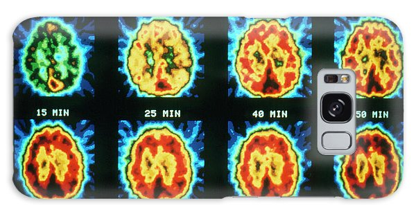 Synthesis Galaxy Case - Pet Scans Showing Protein Synthesis In The Brain by Cnri/science Photo Library