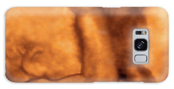 Physiology Galaxy Cases | Fine Art America