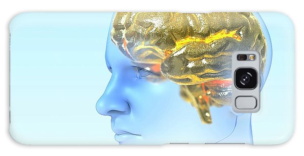 Nervous System Galaxy Case - Genius by Animated Healthcare Ltd/science Photo Library