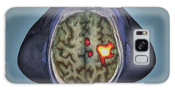 Human Rights Galaxy Case - Healthy Brain by Zephyr
