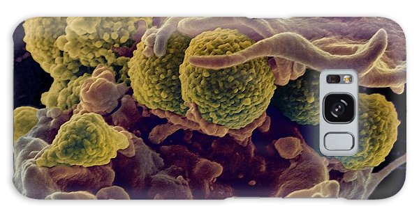 Mrsa Ingestion By White Blood Cell Galaxy Case