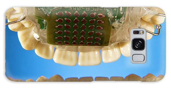 Biomedical Engineering Galaxy Case - Tongue Display Unit Research by Philippe Psaila/science Photo Library