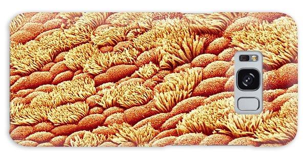 Tissue Galaxy Case - Nasal Lining by Susumu Nishinaga