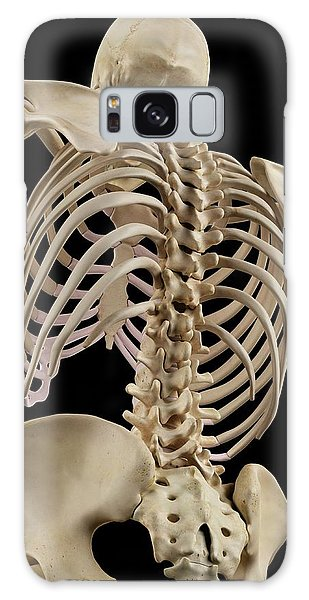 No-one Galaxy Case - Human Spine by Sciepro