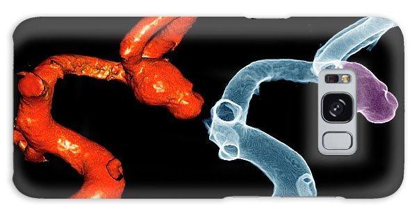 Cerebral Galaxy Case - Cerebral Aneurysm by Zephyr/science Photo Library