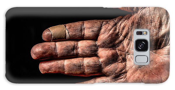 Arthritis  Galaxy Case by Ray Congrove